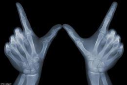 W hands bones.jpg